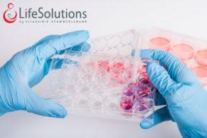 Celulele stem hematopoietice – ajutorul în lupta cu boala